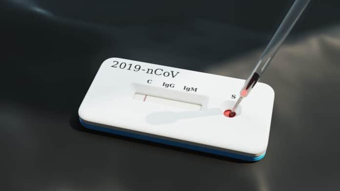 Test de antígenos en Villaviciosa